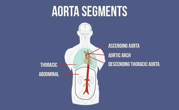 Aorta Anatomy Infographic